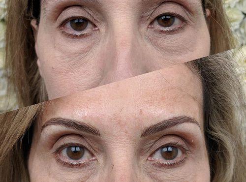 microblading11 result microblading brows cosmetic tattooing eyebrow bar semi permanent eyeliner tattoo eyelash extensions near me microblading surry hills paddington sydney salon