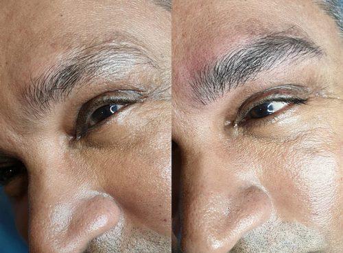 microblading15 result microblading brows cosmetic tattooing eyebrow bar semi permanent eyeliner tattoo eyelash extensions near me microblading surry hills paddington sydney salon