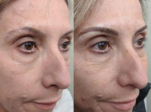 microblading2 result microblading brows cosmetic tattooing eyebrow bar semi permanent eyeliner tattoo eyelash extensions near me microblading surry hills paddington sydney salon