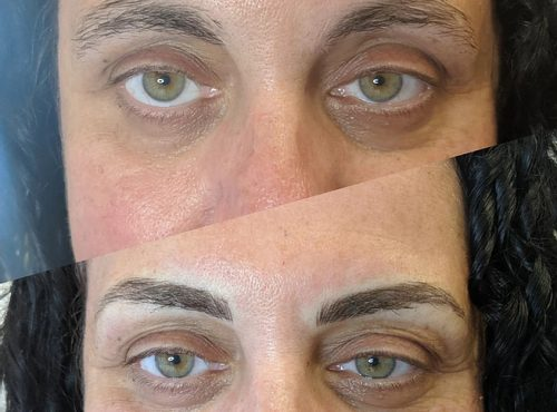 microblading34 result microblading brows cosmetic tattooing eyebrow bar semi permanent eyeliner tattoo eyelash extensions near me microblading surry hills paddington sydney salon